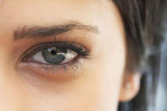 Как избавится от синяка под глазом?