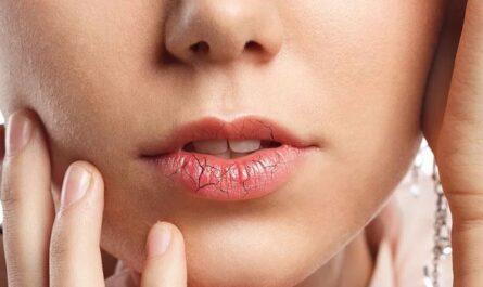Сухие и обветренные губы