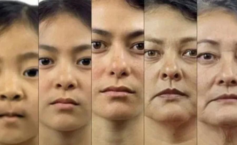 Изменение кожи с возрастом фото
