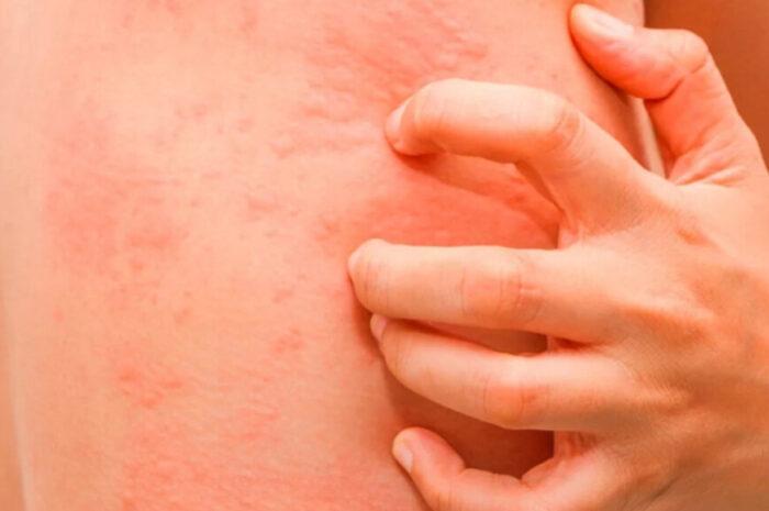 Причины зуда и покраснения кожи лица