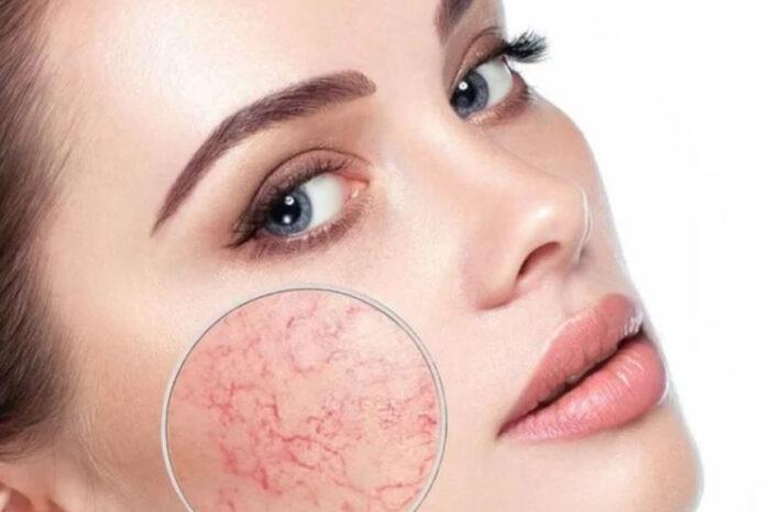 Красная кожа лица: основные причины и противопоказания