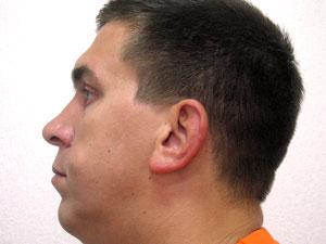 Жировики на лице Фото