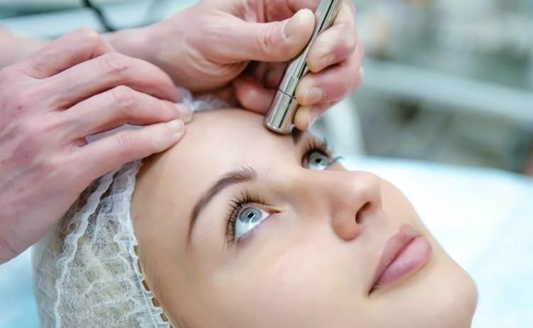 Процесс шлифовки кожи лица