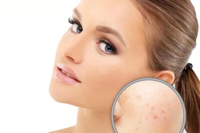 Рак кожи лица: профилактика, разновидности и лечение