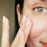 Здоровая кожа