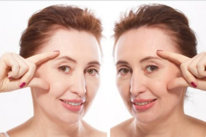Подтяжка кожи лица: как проводится и какой эффект