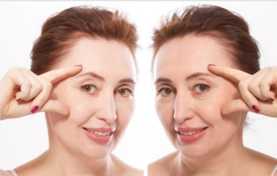 Подтяжка кожи лица