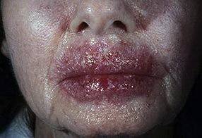 Микоз грибок на лице