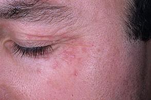 Грибок микоз на лице