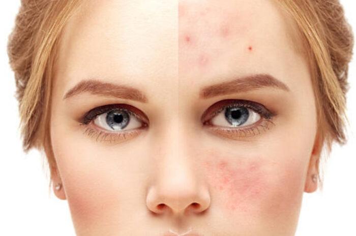 Поражения кожи лица: шрамы, рубцы или ожоги