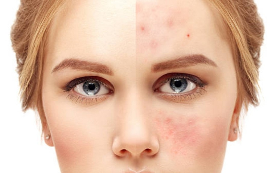 Поражения кожи лица
