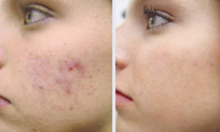 Мезотерапия кожи лица до и после