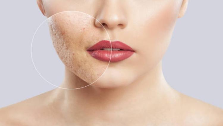 Химический пилинг дефекты кожи
