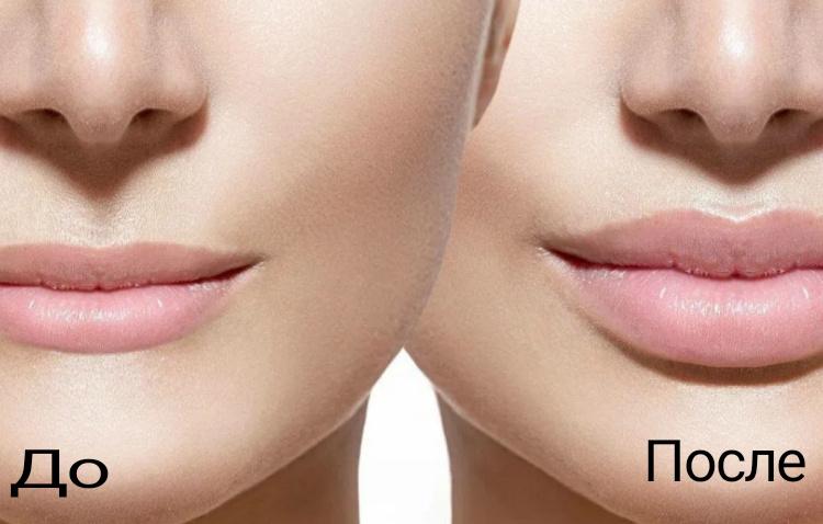 Контурная пластика губ до и после